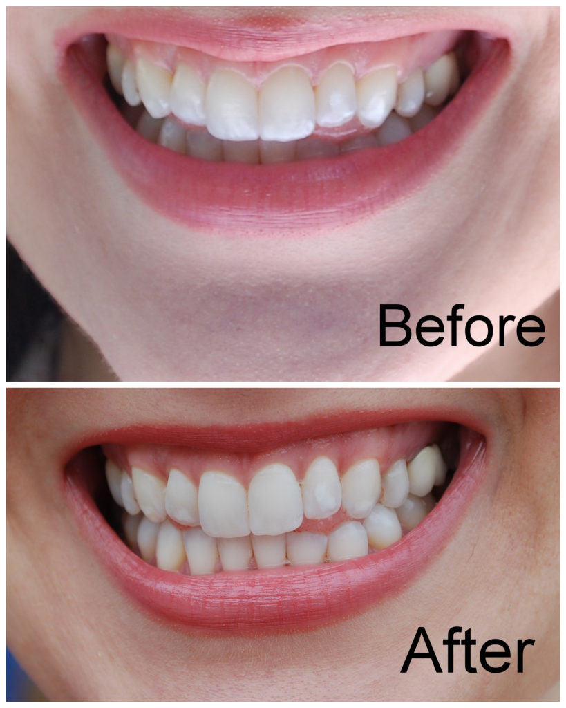 How I whiten my sensitive teeth with SmileBrilliant!